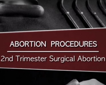 Un medic a făcut 1200 de avorturi. Acum dorește să arate lumii ce este de fapt un avort